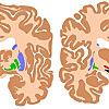 A Psychiatry Blog by Justin Marley